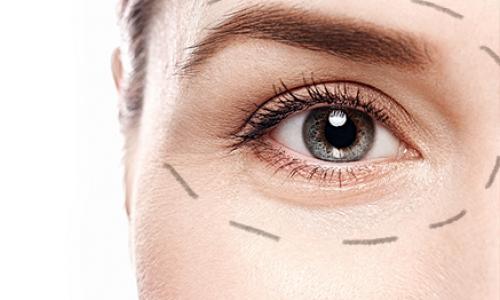 plastica-ocular